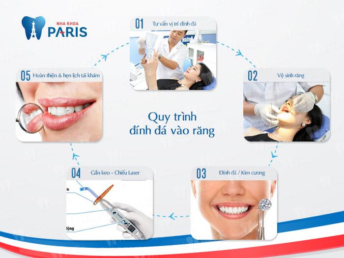 Ưu điểm công nghệ đính đá vào răng E.Las là gì?