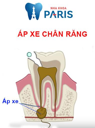 Răng đã lấy tủy tồn tại được bao lâu? Nên nhổ không? Có đau không?