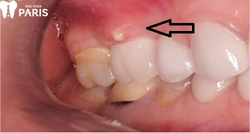 áp xe răng số 6