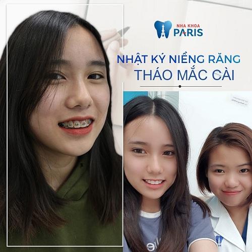 bác sĩ niềng răng uy tín ở Hà Nội