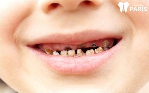 bé bị sún răng sữa