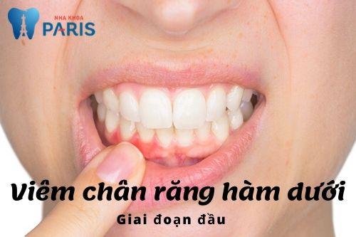 Bệnh viêm chân răng là gì