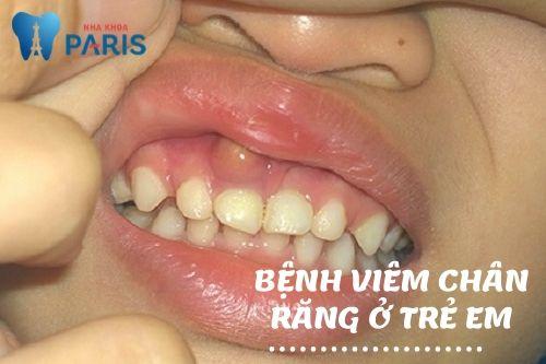 bệnh viêm chân răng ở trẻ em
