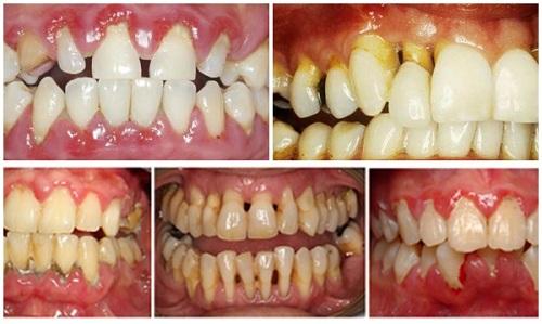 Bệnh viêm quanh răng là gì
