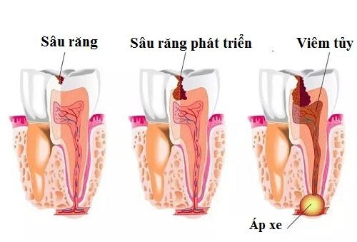 Bệnh viêm tủy răng là gì