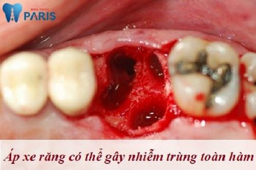 Bị áp xe chân răng có nguy hiểm không