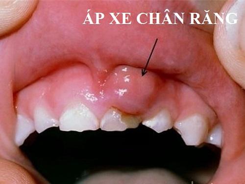 bị áp xe nướu răng
