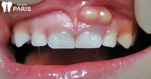 Bị áp xe răng ở trẻ em