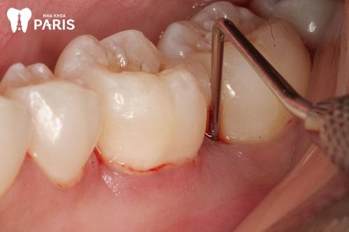 Bị lợi trùm răng hàm dưới