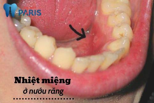 Bị nhiệt miệng thường xuyên là bệnh gì