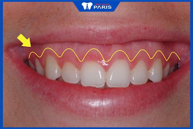Bí quyết giảm đau hiệu quả sau phẫu thuật cười hở lợi