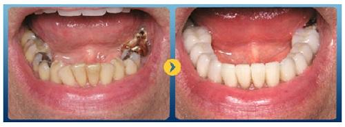 Bị sâu răng hàm dưới nên làm gì