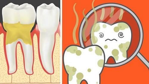 Bị sưng mộng răng có nguy hiểm không