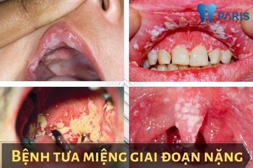 Bị tưa miệng là gì