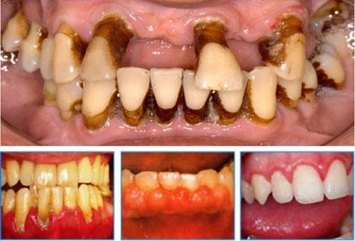 bị tụt nướu răng phải làm sao
