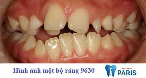 Bộ răng 9630 là gì