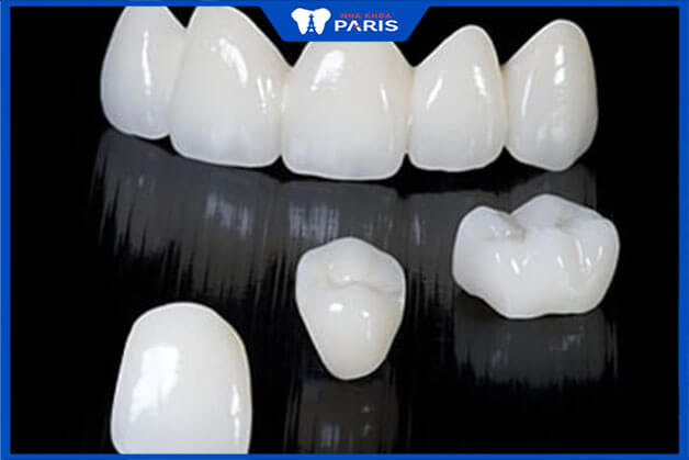 Các loại răng toàn sứ tốt được ưu tiên sử dụng ngày nay