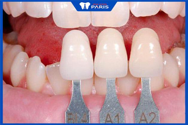 Lưu ý để tránh những tác hại của bọc răng sứ