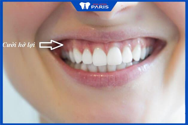 Yếu tố nào tác động tới mức giá của phẫu thuật cười hở lợi?