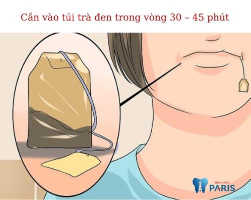 Cách cầm máu khi nhổ răng 2