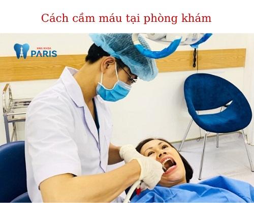 Cách cầm máu khi nhổ răng 3