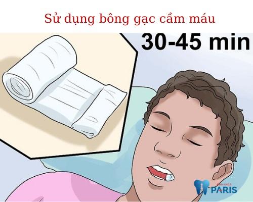 Cách cầm máu khi nhổ răng 1