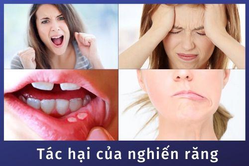Cách chữa bệnh nghiến răng khi ngủ