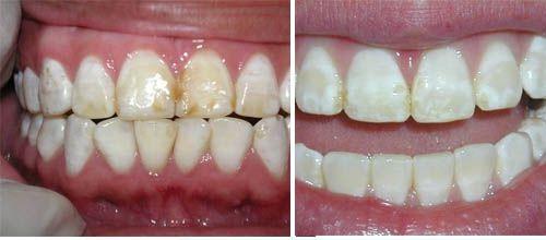 cách chữa mòn cổ chân răng tại nhà