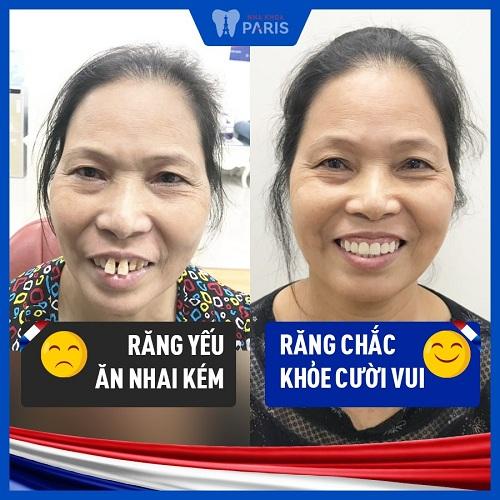 cách chữa răng bị tụt nướu hiệu quả