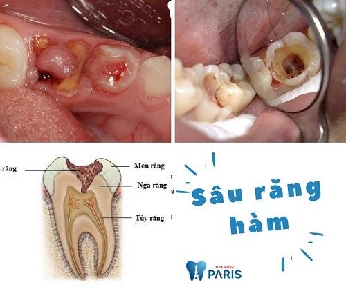 Cách chữa sâu răng hàm tại nhà