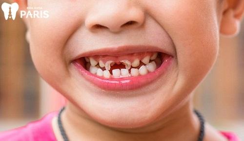 Cách chữa sâu răng trẻ em