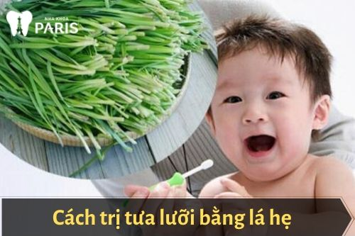 cách chữa tưa lưỡi cho trẻ sơ sinh