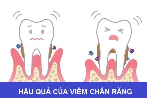 Cách chữa viêm chân răng có mủ tại nhà