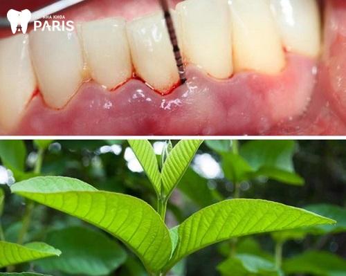 Cách chữa viêm lợi trùm lên răng