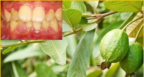 Cách chữa viêm nha chu bằng thuốc nam