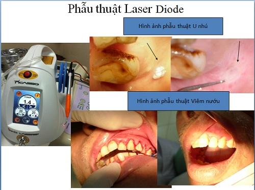 Cách điều trị viêm quanh cuống răng