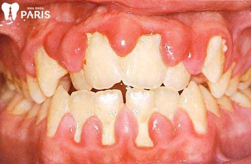 Cách điều trị viêm quanh răng