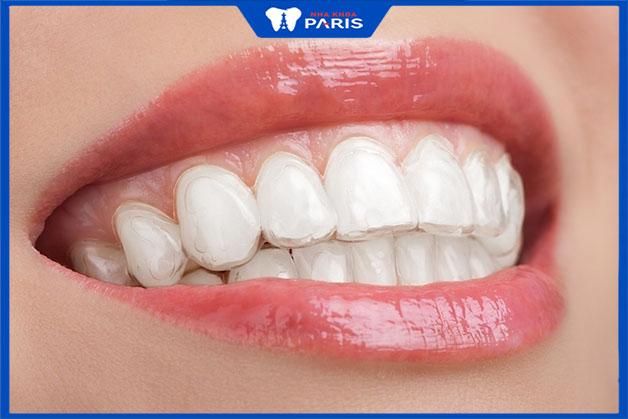 cách ngậm máng tẩy trắng răng
