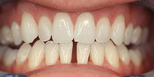 răng thưa hàm dưới