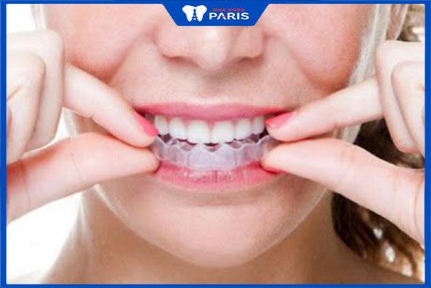 Cách dùng máng tẩy trắng răng chuẩn nhất