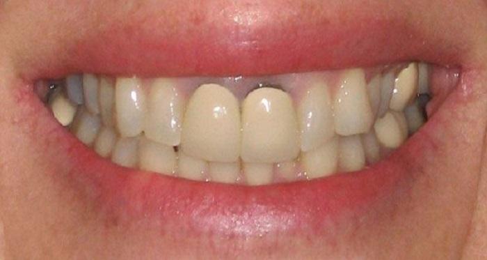 chăm sóc răng miệng sau khi lắp cầu răng sứ
