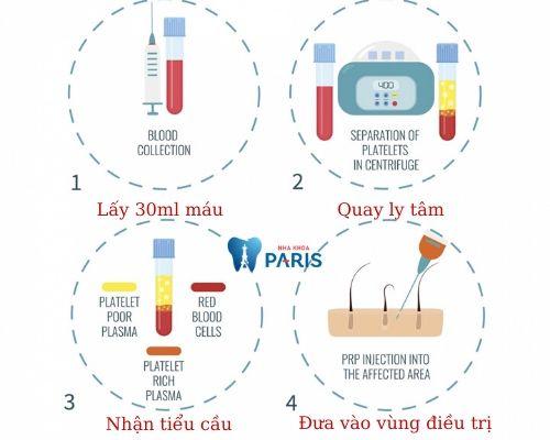 quy trình cấy huyết tương giàu tiểu cầu