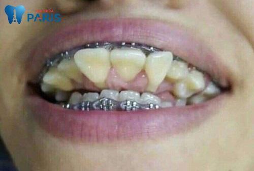Chân răng mọc ngược hàm