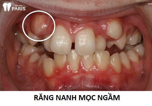 Chiếc răng nanh mọc ngầm