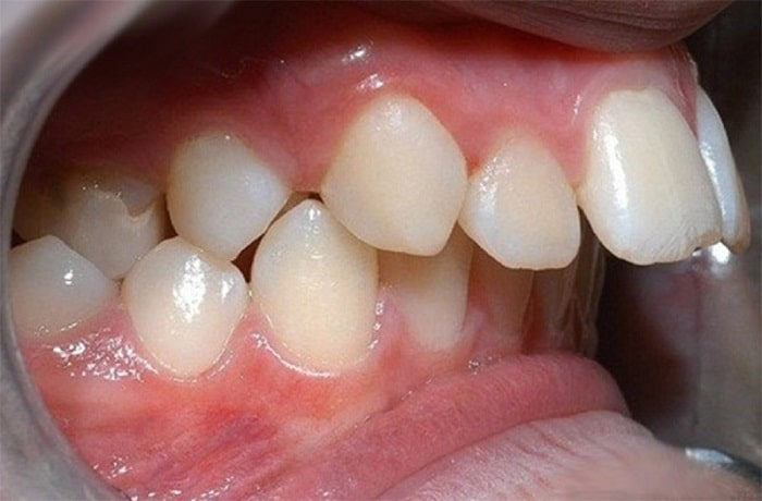 có thể thay đổi được cả hình thể răng giúp giải cứu tình trạng
