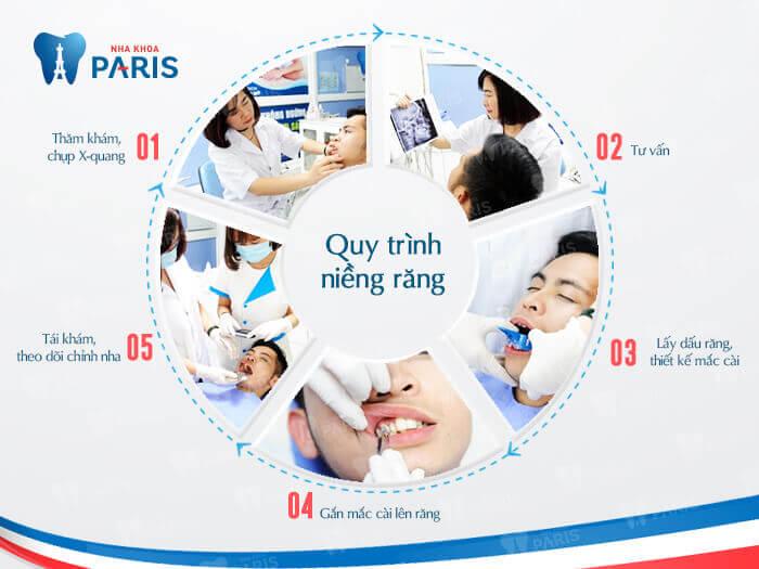 Nha khoa Paris có quy trình niềng răng đạt chuẩn quốc tế