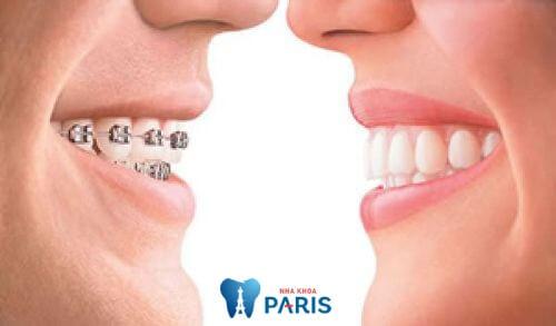 Quy trình, công nghệ chỉnh nha tốt sẽ giúp răng đều, đẹp hơn