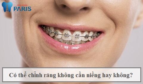 Liệu có thể chỉnh răng không cần niềng không là băn khoăn của nhiều khách hàng