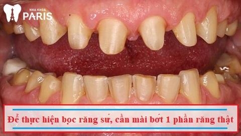 Để bọc răng sứ, bạn cần mài bớt 1 phần răng thật, gây xâm lấn cấu trúc răng