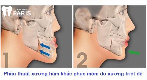 Phẫu thuật hàm là cách chỉnh răng không cần niềng khi bị hô, móm do xương